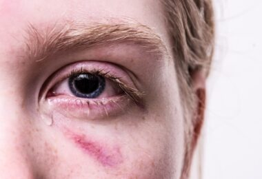What can your eyes reveal about your health